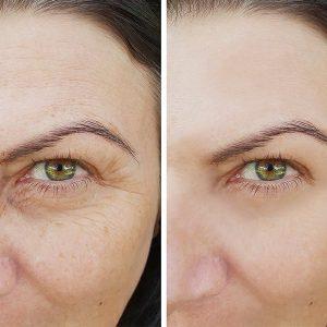 טיפול פנים משקם